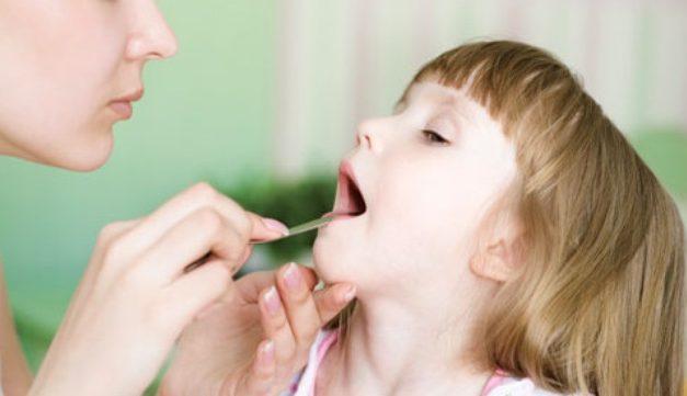 Viêm họng cấp ở trẻ nhỏ phải làm sao?