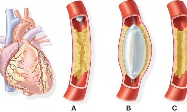 5 điều có thể bạn chưa biết về bệnh động mạch vành