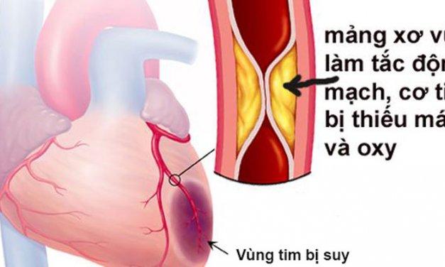 Thiếu máu cơ tim và những sự thật cần biết