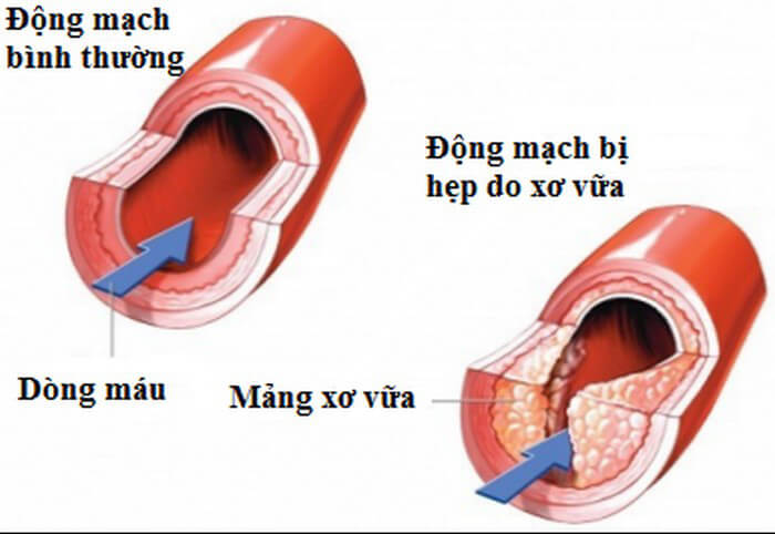 Xơ vữa đông mạch là gì và nguy hiểm không?
