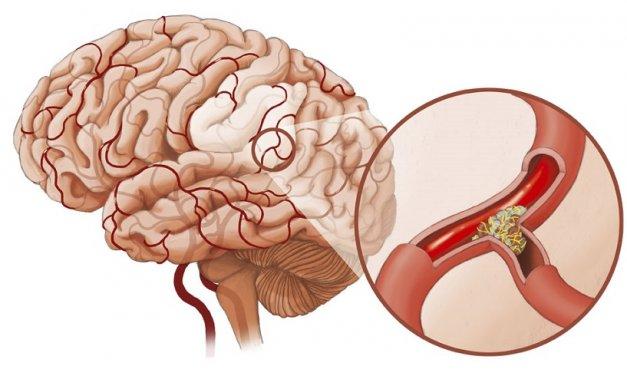 Xuất huyết não thực chất là bệnh gì