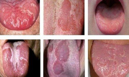 Ung thư lưỡi có nguy hiểm không?