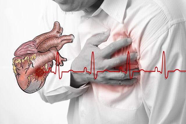 Kết quả hình ảnh cho suy tim