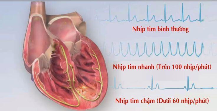 Nhịp tim nhanh có đáng lo ngại không?