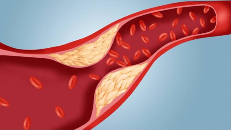 Rối loạn lipid máu là gì và điều trị thế nào