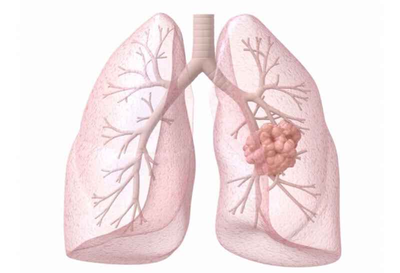 Cách phòng bệnh ung thư phổi đúng là gì?