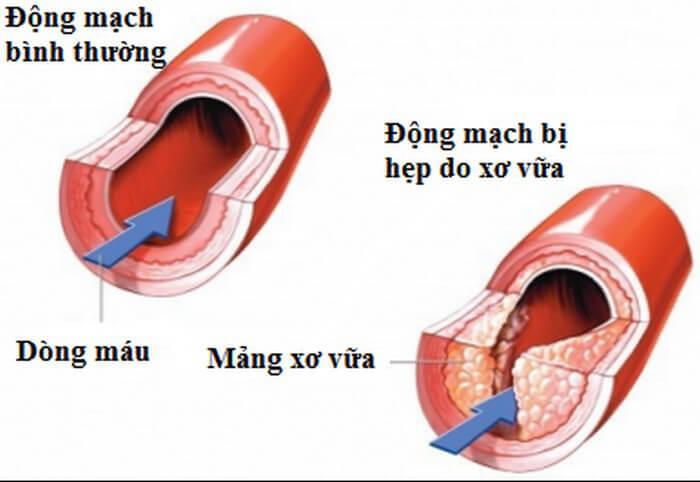 Xơ vữa động mạch