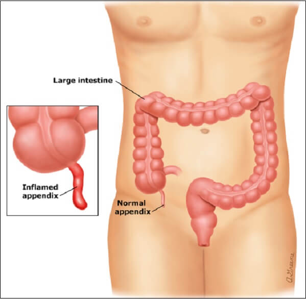 Nguyên nhân và những biểu hiện đau ruột thừa