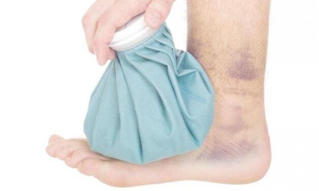 7 cách làm tan máu bầm hiệu quả tại nhà