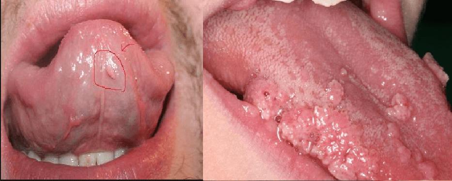 Bệnh sùi mào gà ở nam có nguy hiểm không?