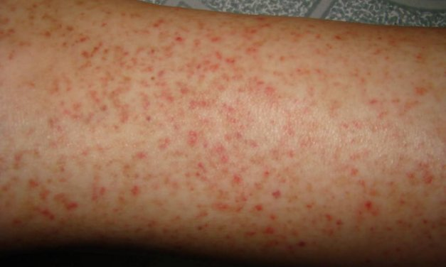 Xuất huyết dưới da ở trẻ – nguyên nhân và cách xử lý