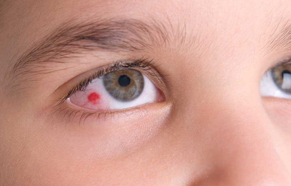 Viêm giác mạc có nguy hiểm không?