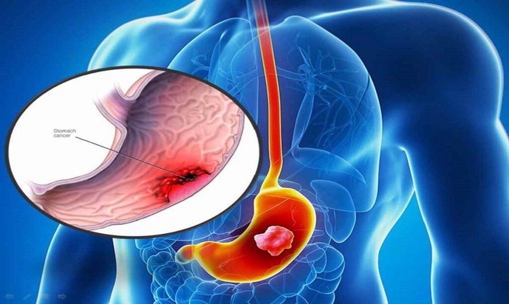 Ung thư dạ dày – căn bệnh làm 800000 người tử vong